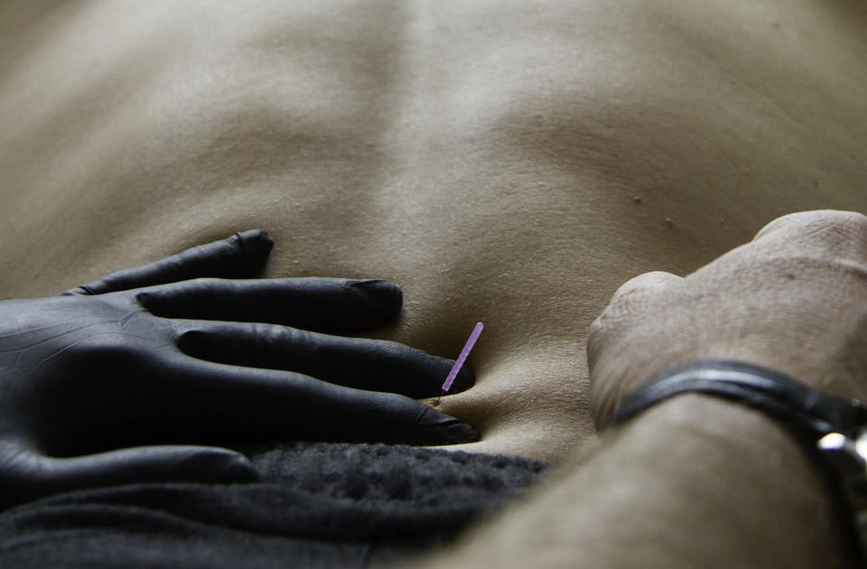 Dry needling fysiotherapie in Oud-Beijerland