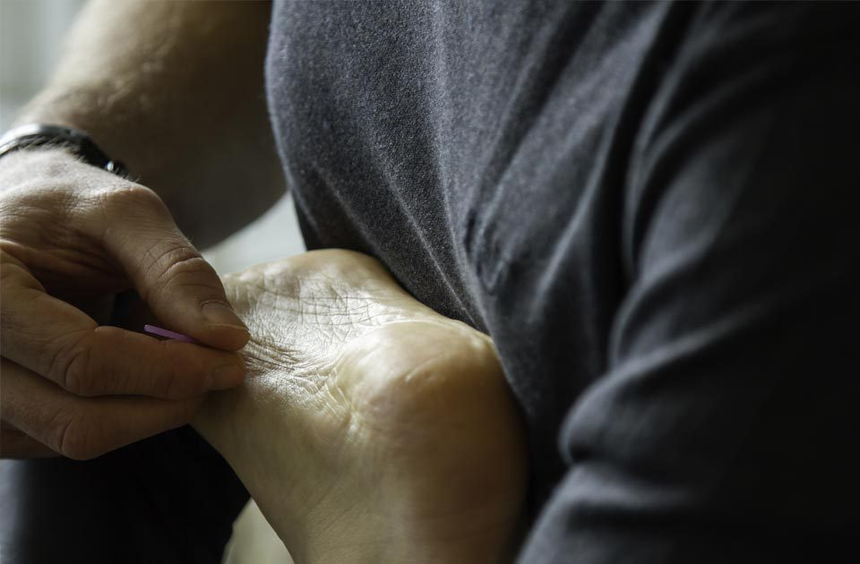 Fysioconnect dry needling fysiotherapie