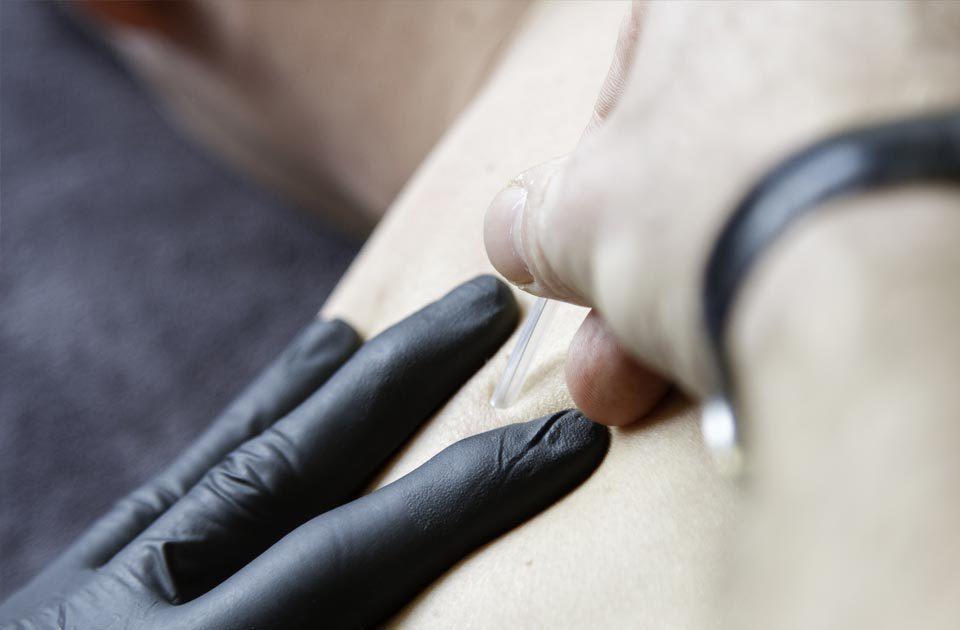 Fysioconnect triggerpoints behandeling